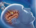Teknik penggunaan kedokteran nuklir pada neurosains
