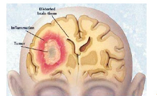 Gambar 1: Tumor Pada Sistem Saraf Pusat