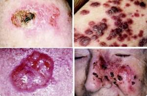 Penampakan Kanker yang Patut Dicurigai