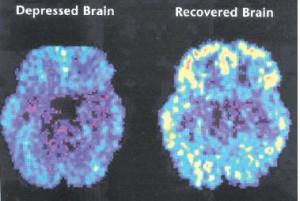 Penampakan MRI penderita Mania Bipolar