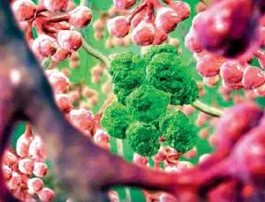 Penampakan sel-sel kanker
