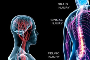 Kerusakan sistem saraf tulang belakang