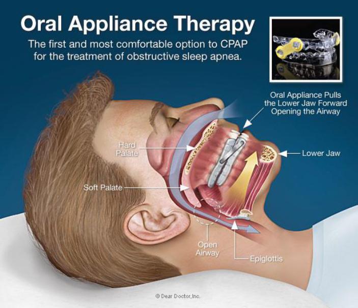 Gambar 4 Teknik Pengobatan Sleep Apnea