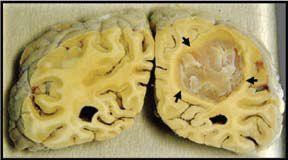 Potongan Otak Manusia yang Menderita Tumor