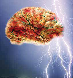 Gbr 1 Ilustrasi Serangan Kejang yang menimbulkan gangguan sirkuit listrik di dalam otak
