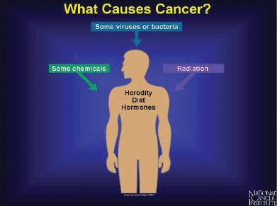 Mengenali Penyakit Tumor Otak - Kabari News