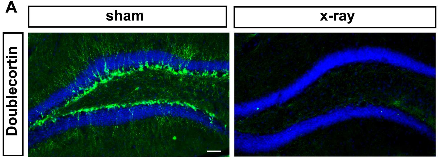 5-Bagian Detate Gyrus Hippocampur Yang Mengalami Regenerasi Sel Sel Saraf