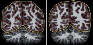 Struktur Otak Penderita Autisme