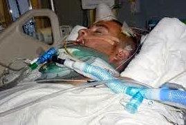Trauma kepala akibat kecelakaan Lalu lintas