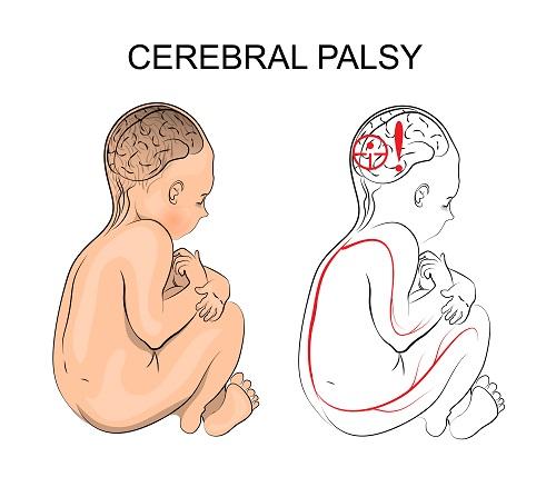 (Gambar 2 Bagian Otak Yang Mangalami Kesurakan Pada Pasien Cerebral Palsy)